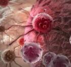 áttétes daganatok