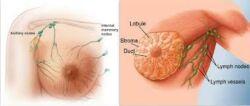 Női emlő és a nyirokrendszer