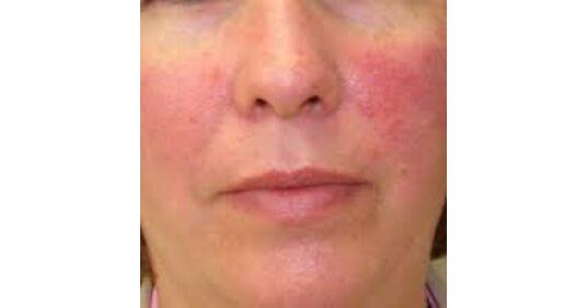 Kiütés a gyermek arcán - mi ez, a kiütés típusai - Tünetek