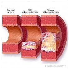 érszükület - atherosclerosis és homogenizált tej