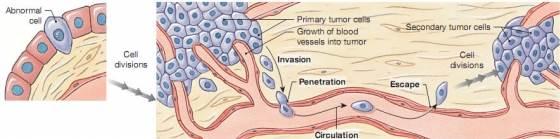 Tumor áttét keletkezése
